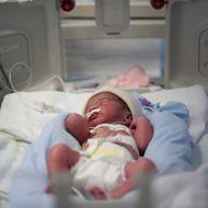 23 Jul 2009, Creil, France --- Premature Baby.
