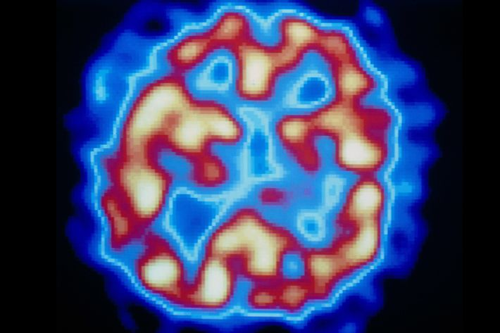 PET scan (temporal) of hallucinating schizophrenic
