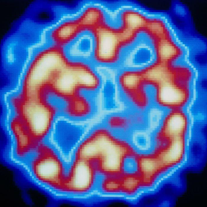 PET scan (temporal) of hallucinating schizophrenic