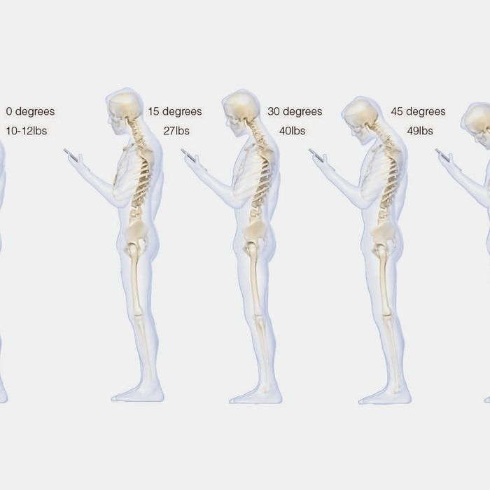 Look At How Texting Is Warping Your Spine