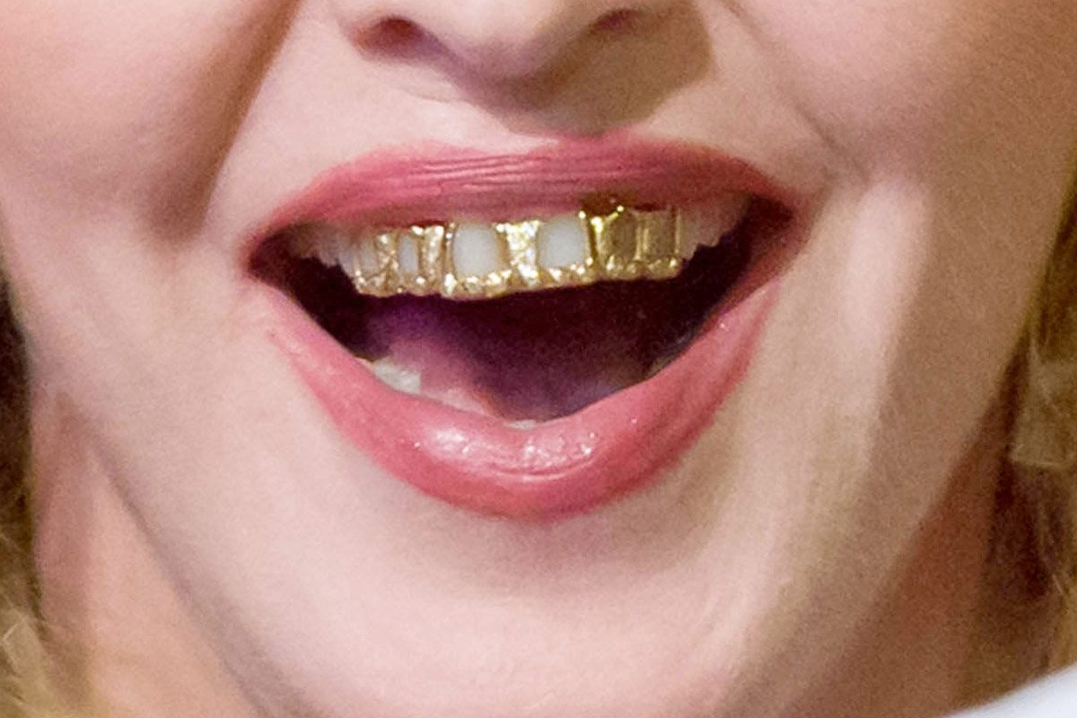 Grillz Have Risen, But Do They Harm Your Teeth? -- The Cut