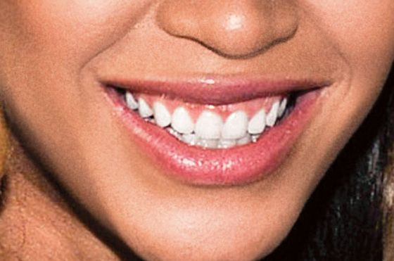 beyonce teeth - photo #16