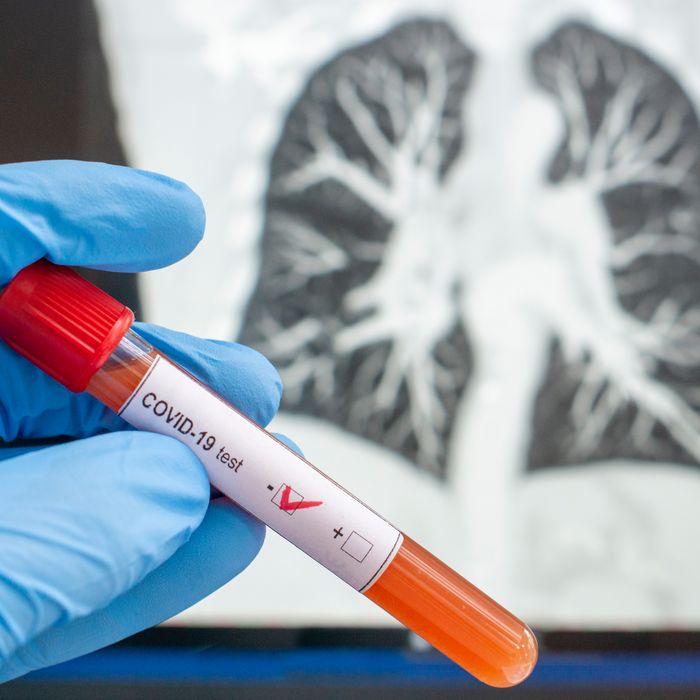 Negative COVID-19 antibody test.