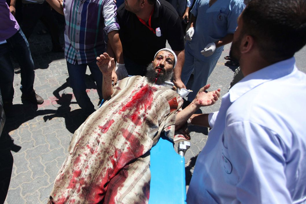 GAZA CITY, GAZA - JULY 24: A Palestinian is wounded during an Israeli attack and is taken to Nasir Hospital in Gaza City, Gaza on 24 July, 2014. Wounded Palestinian is from Ebu Sakra family which has lost 4 members during Israeli attack. (Photo by Ashraf Amra/Anadolu Agency/Getty Images)