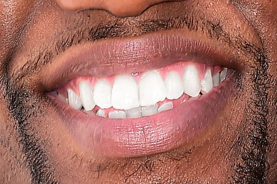 Why is america obsessed with perfect teeth science of us 8 solutioingenieria Choice Image