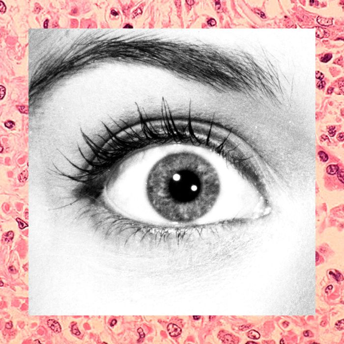 If you see these weird dots or cobwebs in your eye, they are ...