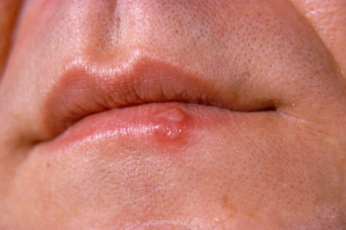 Cold sores and oral sex herpies