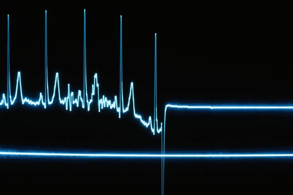 It Happened to Me: I Don't Have a Heartbeat — the Doctors Checked