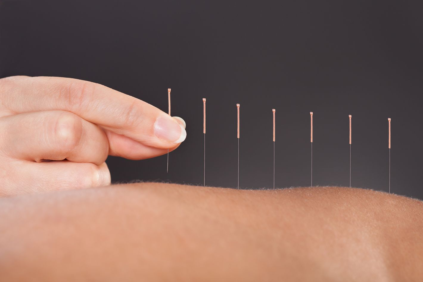 Acupuncture with Kelly Duigan