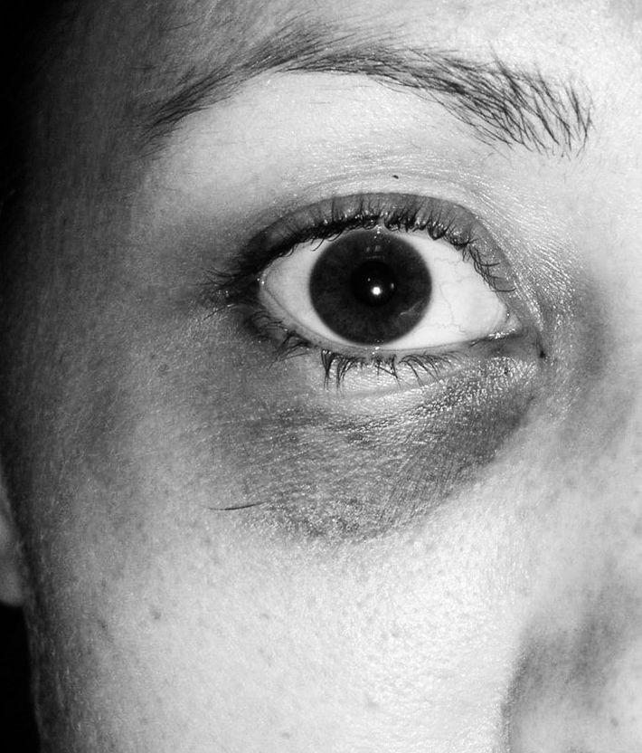Colbie Holderness's black eye.
