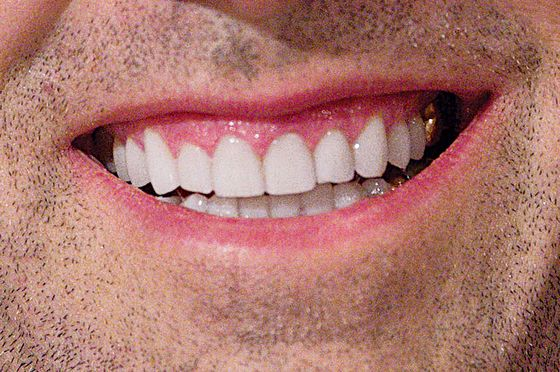 Why is america obsessed with perfect teeth science of us solutioingenieria Choice Image