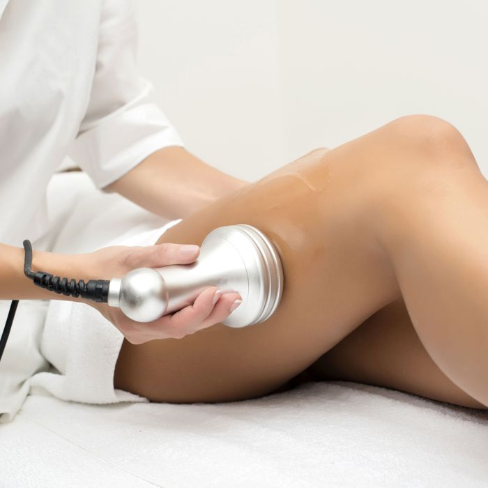 Forget Liposuction: I Tried Fat-Melting Technologies