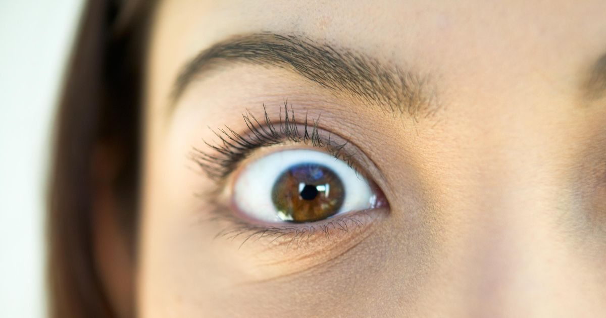 Why Is My Eyelid Tormenting Me? -- The Cut