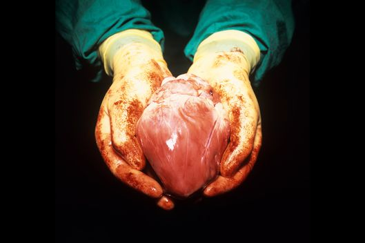 03 Jul 2006 --- MODEL RELEASED. Heart transplant. Conceptual image of a surgeon holding a heart. This image could be interpreted conceptually as representing the importance of organ donation. --- Image by ? Science Photo Library/Corbis