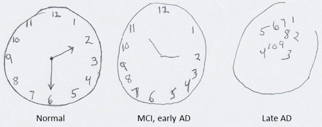 Drawing Of A Clock From Left To Right By Someone With Healthy Brain Mild Cognitive Impairment And In The Late Stages