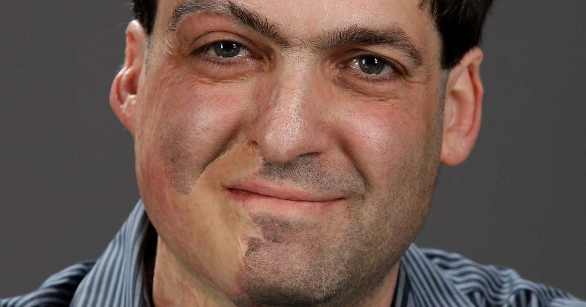 How A Terrible Accident Inspired Dan Ariely S Career Path