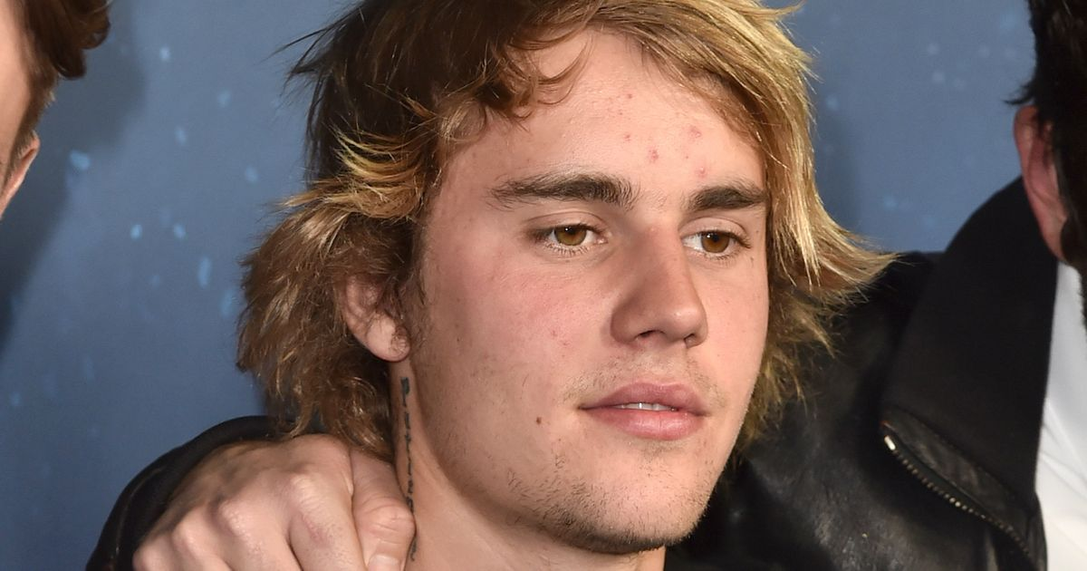 Justin Bieber Takes Break From Music for Personal Issues