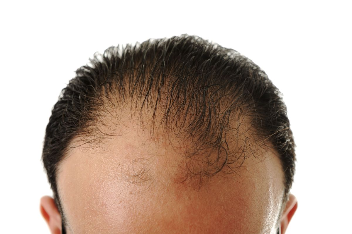Foreskin May Help Cure Male Pattern Baldness The Cut