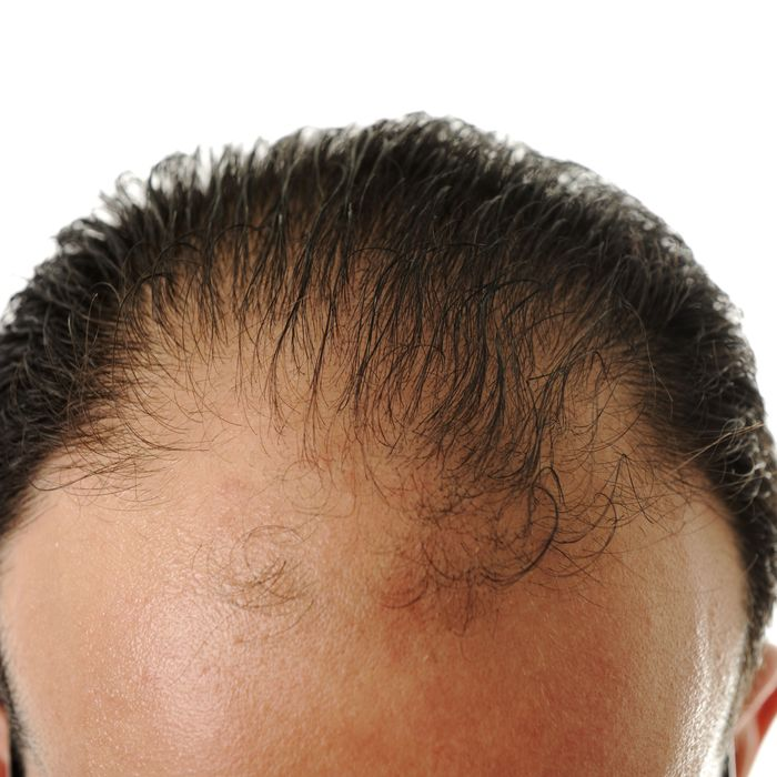 Foreskin May Help Cure MalePattern Baldness Simple Male Pattern Baldness Cure Discovered