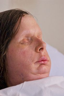 "Here are the first post-surgery photographs of Charla Nash, who received a full face transplant in late May of 2011 at Brigham and Women's Hospital. Nash was mauled by her friend's chimp in Connecticut in 2009. Ms. Nash had a double hand transplant which were rejected by her body and had to be removed again. She said: ""I was given the chance to restore most of what I lost by coming to Brigham and Women's Hospital. Here I received a new face and two hands that will allow me to be independent once again and able to be part of society. Losing the new hands is just a bump in the road of my recovery. I believe that one day I'll have two hands to help me live as a blind person with confidence.""  <P> Pictured: Charla Nash <P> <B>Ref: SPL305263  110811  </B><BR/> Picture by: Lightchaser Photography/ Splash News<BR/> </P><P> <B>Splash News and Pictures</B><BR/> Los Angeles:310-821-2666<BR/> New York:212-619-2666<BR/> London:870-934-2666<BR/> photodesk@splashnews.com<BR/> </P>"