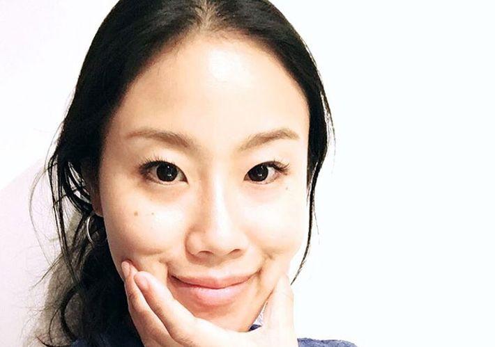 How i used korean skin care to treat my eczema ccuart Choice Image