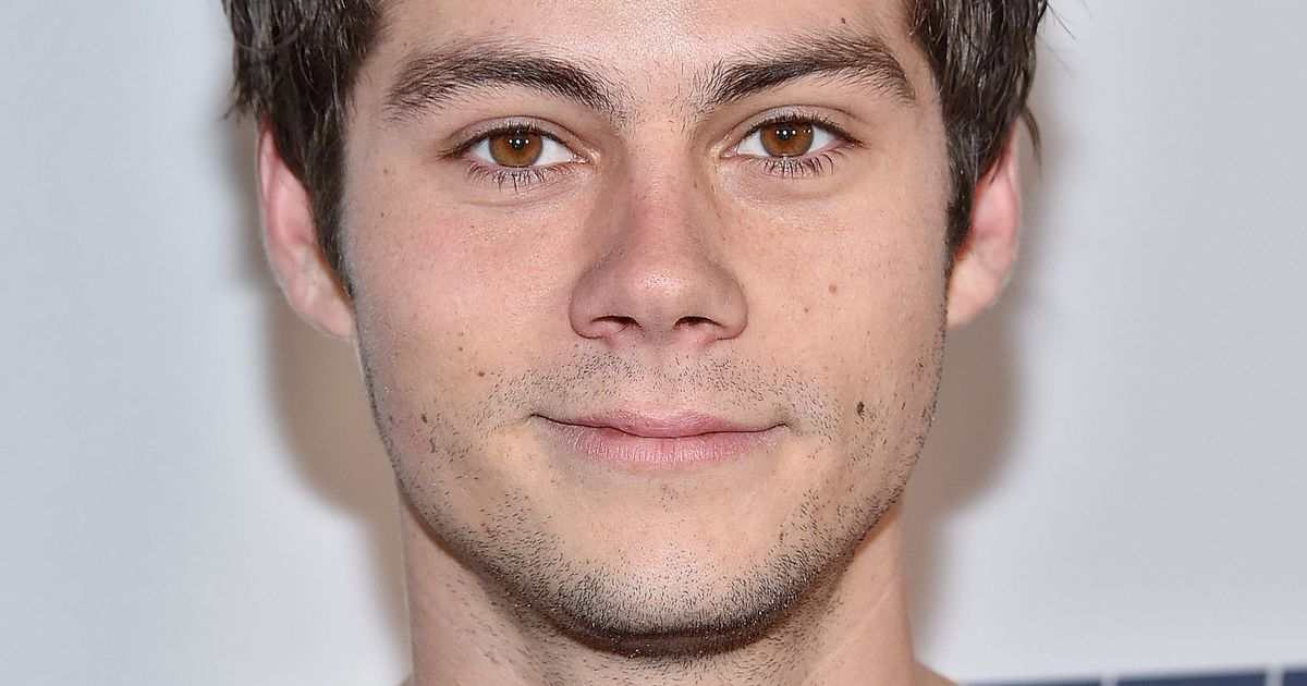 Dylan Obrien Was Accidentally Run Over By A Car On The Set Of Maze