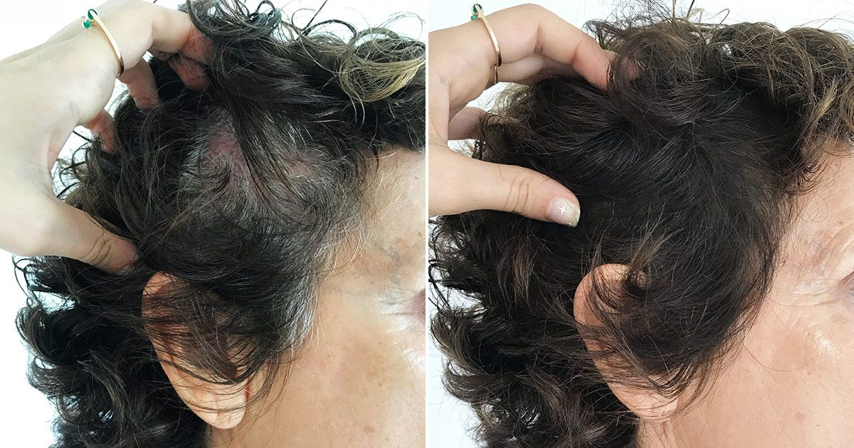 This Powder Made My Mother's Gray Hairs Disappear