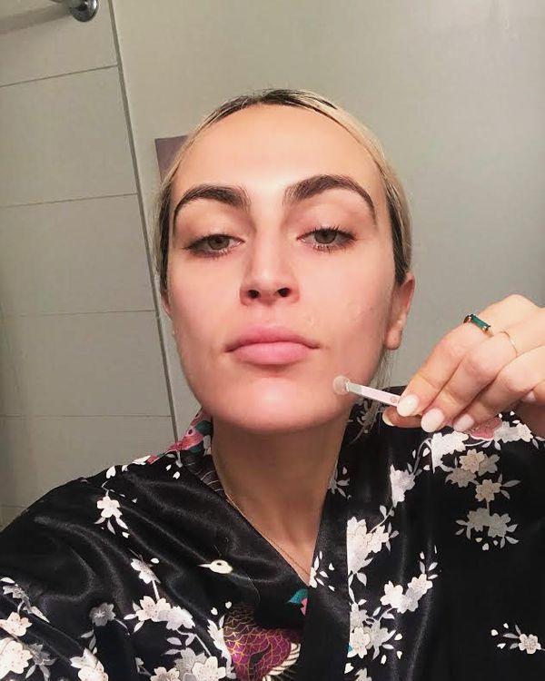 Rio Viera Newton applying her pimple patch.