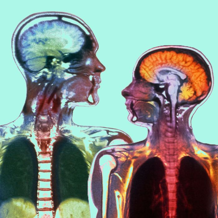 Male brain sexuality and aging