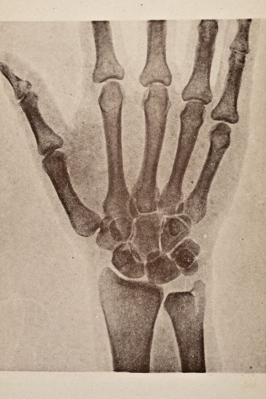 X-ray from 'Atlas and Epitome of Traumatic Fractures and Dislocations' (by Dr. H. Helferich), 1902. (Photo by VintageMedStock/Getty Images)