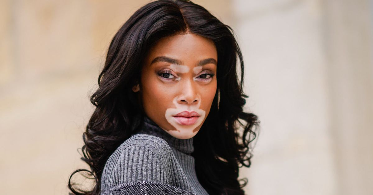 Model Winnie Harlow Isn T A Vitiligo Sufferer