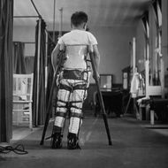 1947: A child suffering from Infantile Paralysis learning to walk with the aid of a special support, at Queen Mary's Hospital, London.