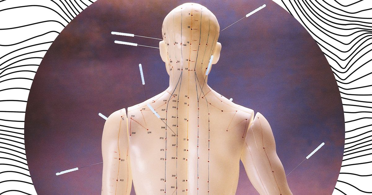 Can You Get Acupuncture If There's Nothing Wrong With You?