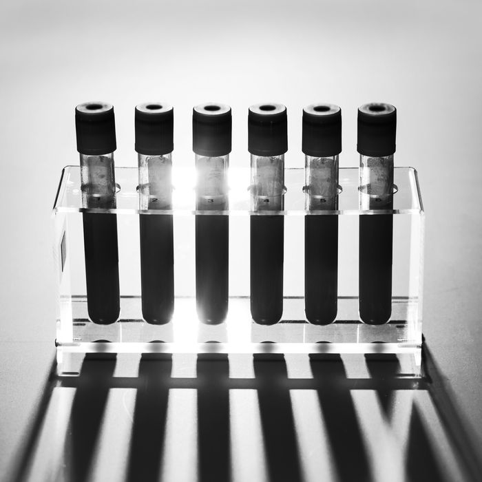 Blood vials.