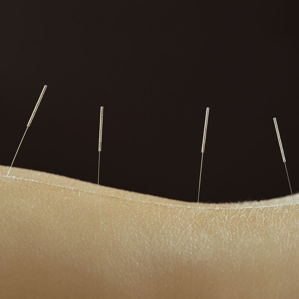 Acupuncture with Dr. JD Yang, MD