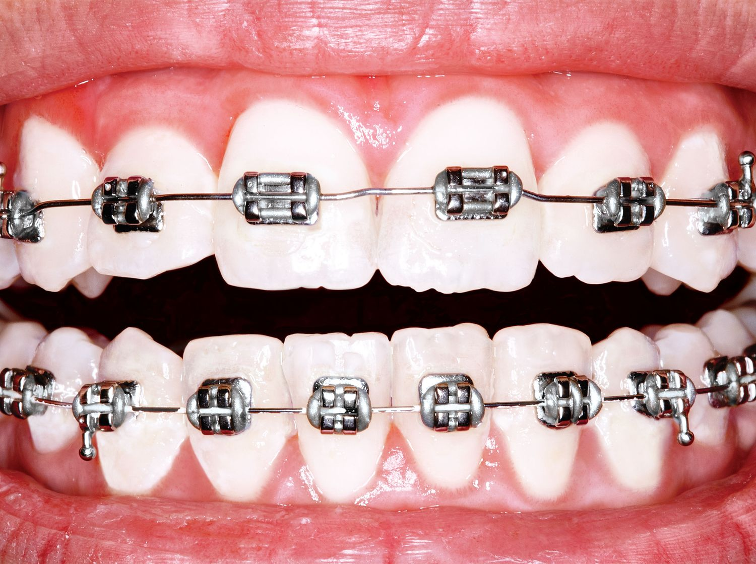 how to keep teeth clean with braces