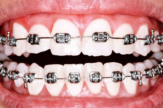 9bc5269a6 Eighty percent of North American teenagers are currently in an  orthodontist's care, with the recommended average age of a first visit now  7.
