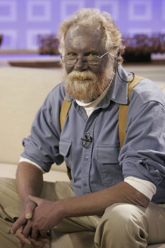 "Pictured: Paul Karason talks exclusively with NBC News' ""Today"" about turning permanently blue after using colloidal silver on January 7, 2008."